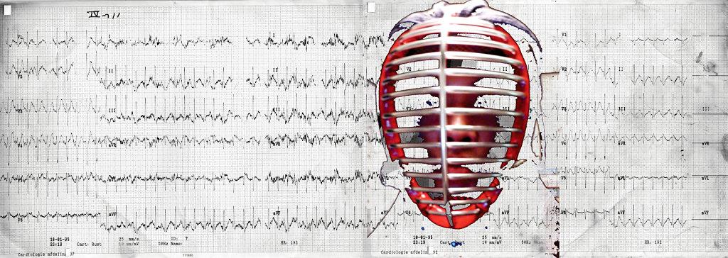Kendo ECG
